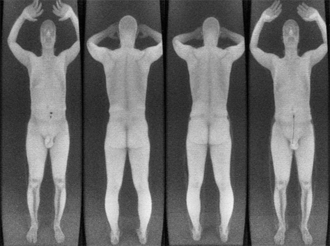 It's Shockingly Easy to Hide Guns and Bombs From Backscatter Scanners