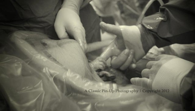 The First Viral Facebook Photo of 2013 Shows Baby Grabbing Doctor's Finger From Inside Mother's Womb