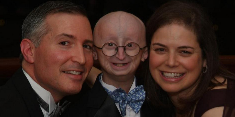 Massachusetts Boy Dies from Complications of Accelerated Aging Disease