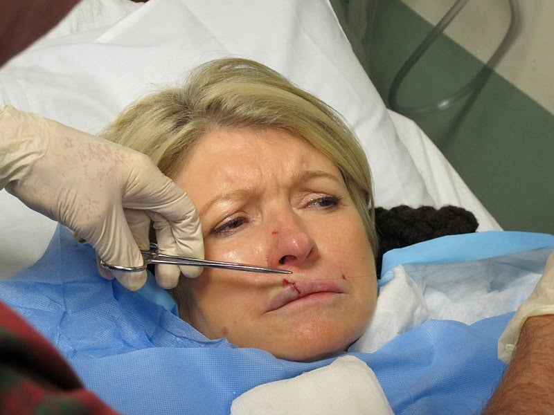 Martha Stewart Gets Stitches After Headbutt From French Bulldog