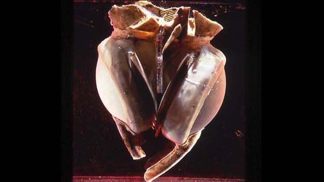 The World's Oldest Artificial Heart