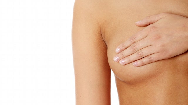 Study Splits Breast Cancer Into Four Treatable Types