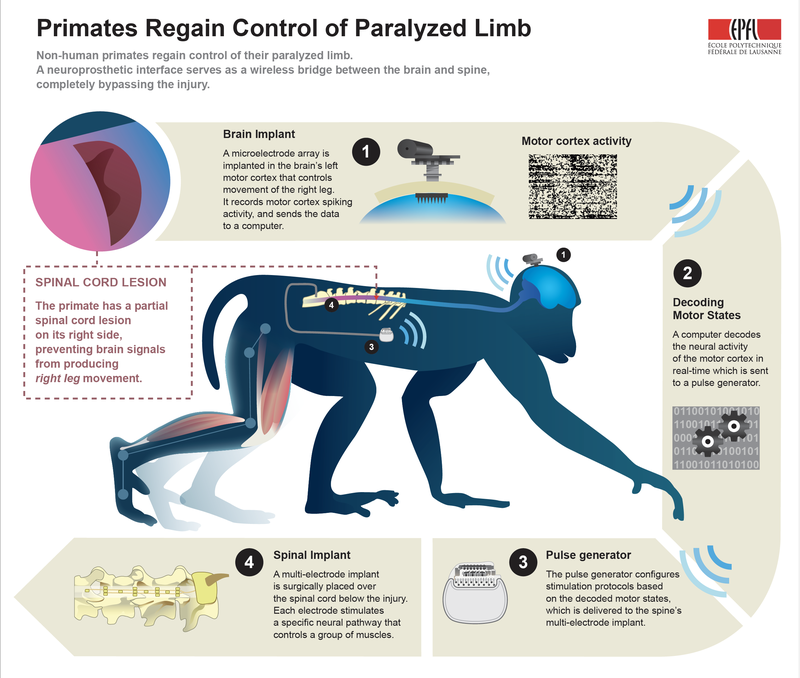 Brain Implant Allows Paralyzed Monkey to Walk Again