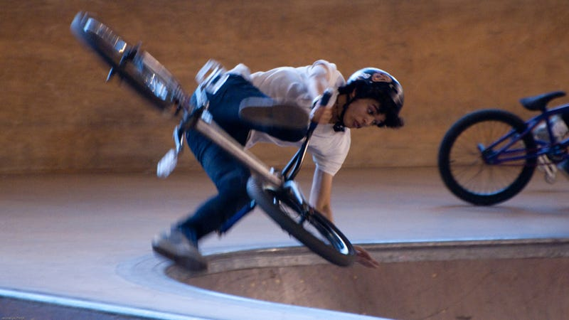 What Was Your Gnarliest Childhood Wheeled Injury?