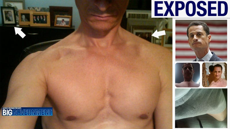 Anthony Weiner Is Your New Topless Congressman