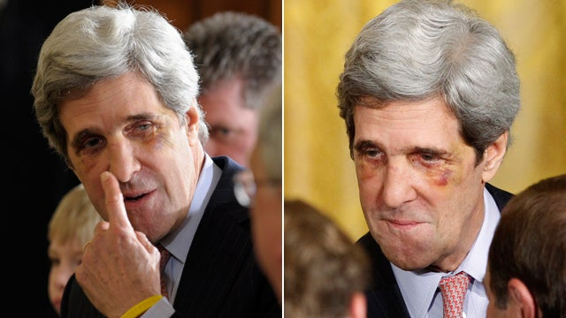 John Kerry's Bruised Face Will Be 2012's Scariest Halloween Costume