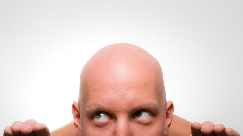 Why Haven't Bald Men Gone Extinct?