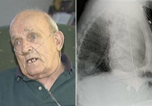 This Man Had a Plant Growing Inside His Lung