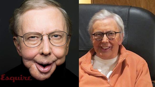 Roger Ebert Gets a Prosthetic Chin