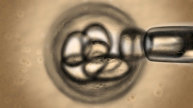 Scientists Make Stem Cells From Human Eggs