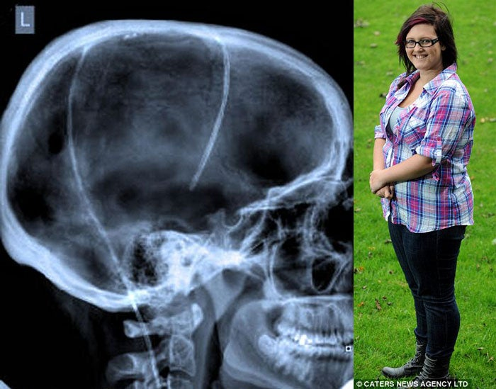 17-yo Girl Must Process Brain Fluid Inside Her Belly to Survive