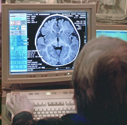 An MRI Machine On Every Desktop