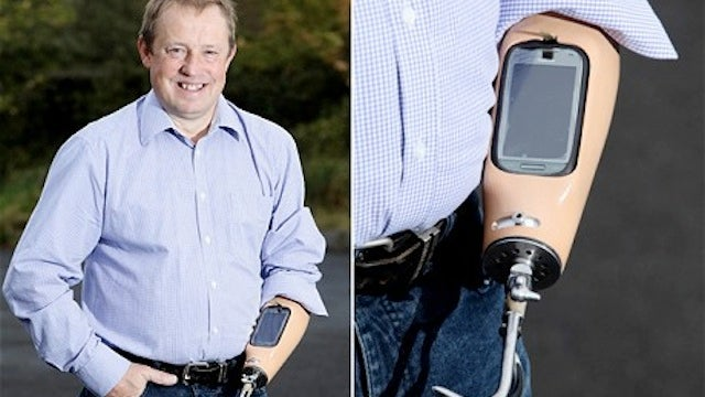Genius Handicapped Man Carved a Smartphone Dock into His Fake Arm