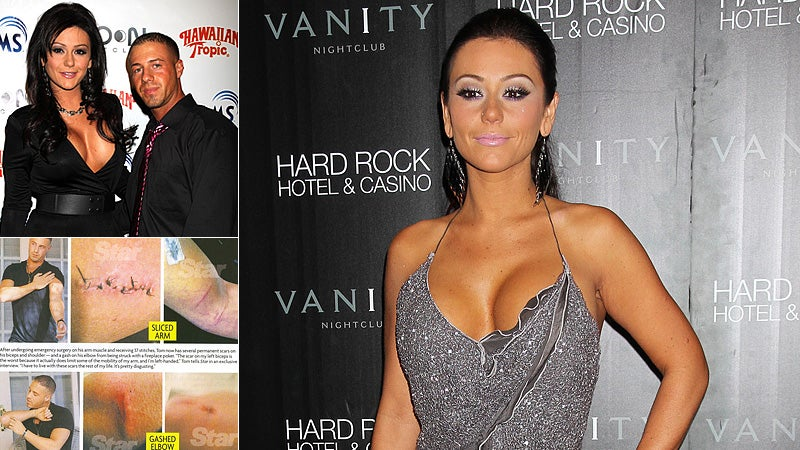 Ex-Boyfriend: JWOWW Put a Steak Knife Through My Arm