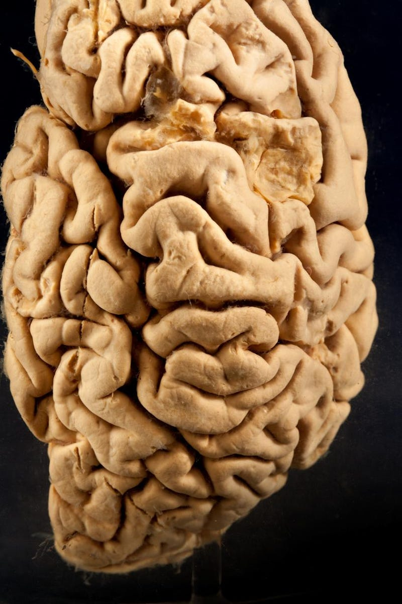 7 Mind-Blowing Artifacts That Reveal the Strange Beauty of Brains