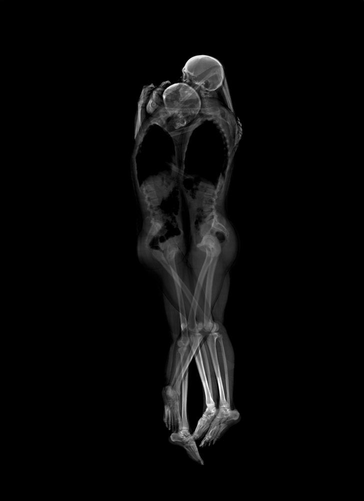 Tender and Playful X-Ray Portraits of Couples