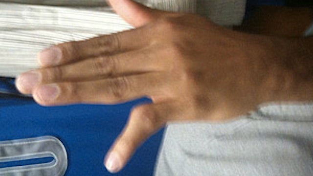 Look At Shawn Marion's Disgustingly Dislocated Pinkie