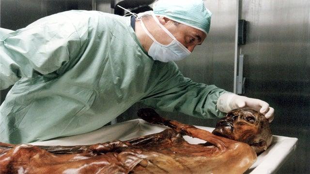 Ötzi the Iceman had Deep, Soulful Brown Eyes