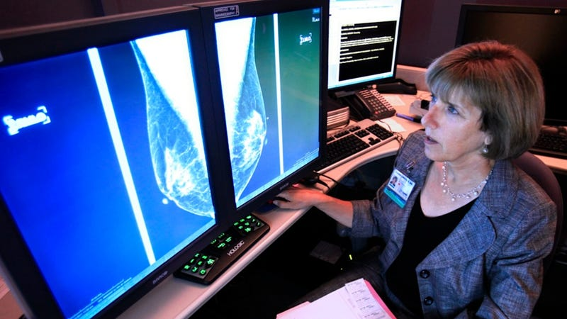 UK Women Under 50 Diagnosed with Breast Cancer in Record Numbers