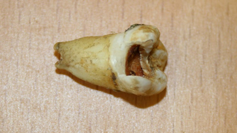 John Lennon's Rotten Tooth for Sale for $16K