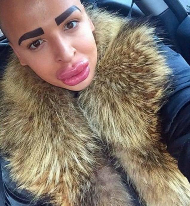 Guy spends $150,000 in plastic surgery to look like Kim Kardashian