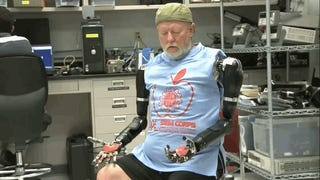 The First Person To Ever Receive Two Mind-Controlled Prosthetic Arms