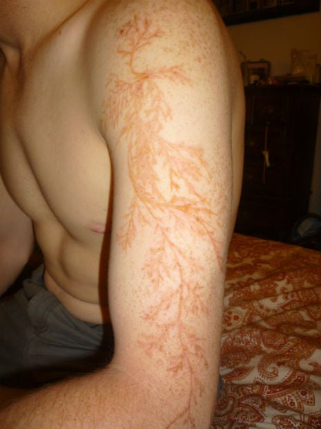 This is what your skin looks like after you've been struck by lightning