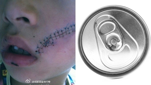 A Boy Needed 38 Stitches After a Frozen Soda Can Exploded in His Face
