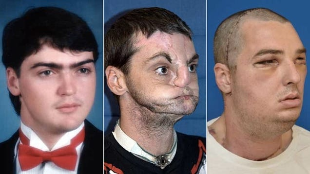 The Most Extensive Face Transplant Ever Gives a Man a New Jaw, Teeth, Tongue, Muscle, Tissue, Bone and Skin