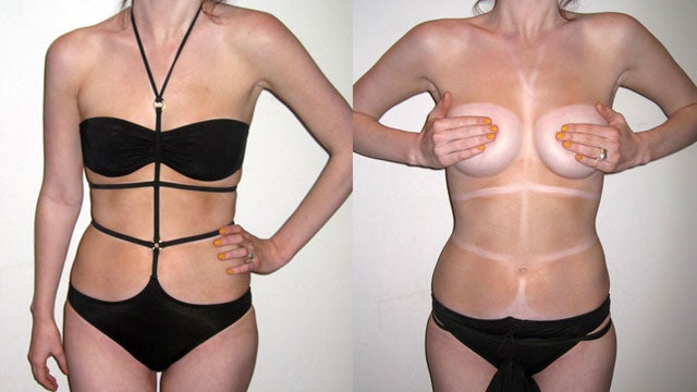 The Strappy Swimsuit Trend Creates the World's Worst Tan Lines