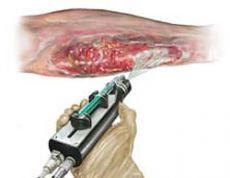 Spray on Skin Gun Shoots Stem Cells To Heal Your Open Wounds