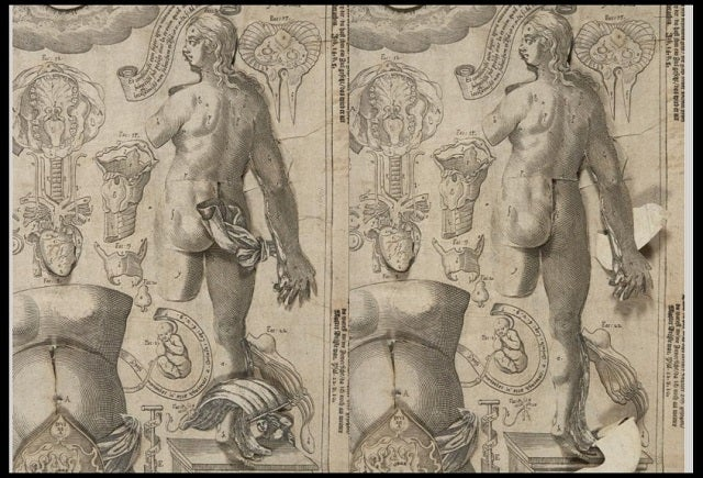 Columbia Just Digitized a Bestselling Anatomy Flipbook From the 1600s