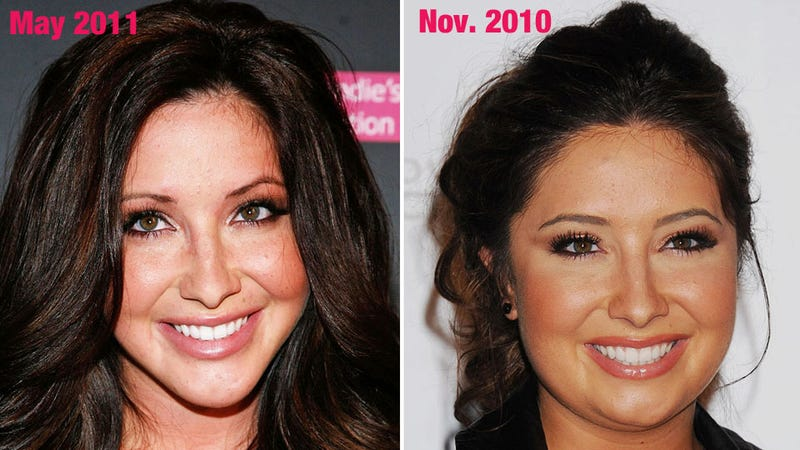 Bristol Palin's Face Looks Different, Doesn't It?