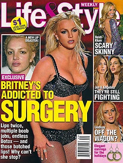 This Week In Tabloids: Twisted Childhoods, Plastic Surgery Addictions & Body Bloopers