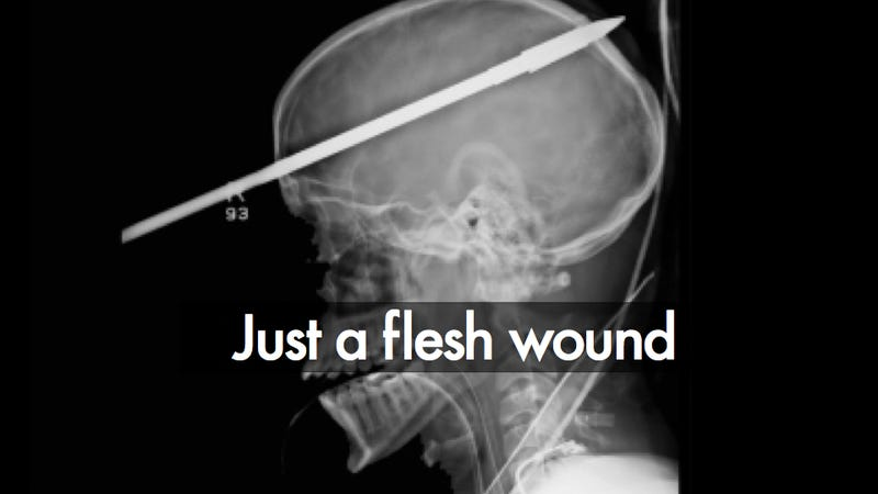 Incredible X-ray Image of the Boy Who Survived a Spear Through the Brain