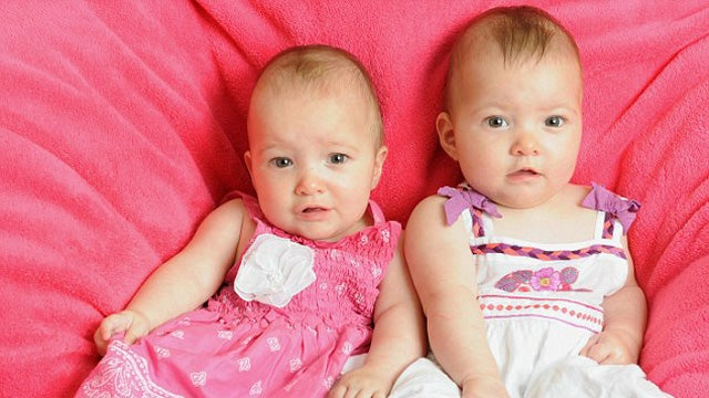 Twin Saves Sister's Life In The Womb