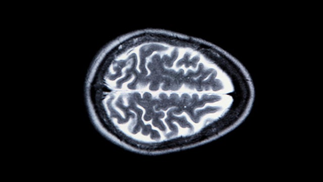 Brain Scans Can Now Reveal Who You're Thinking About