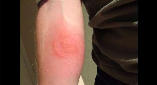 Man Gives Himself A Tattoo By Letting 1,000 Bed Bugs Feed On Him
