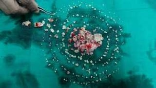 Holy shit.  232 teeth removed from teen's mouth