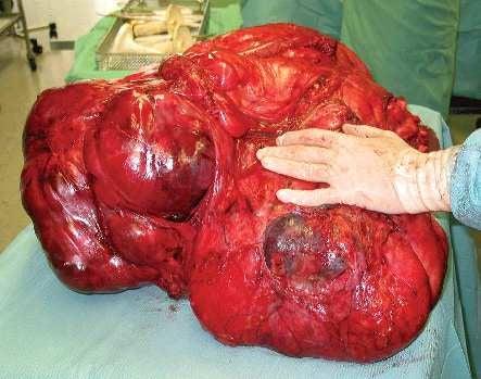 How to grow a 100-pound tumor