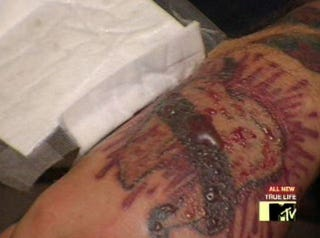 Think before you ink the painful process of tattoo removal for How painful is tattoo removal