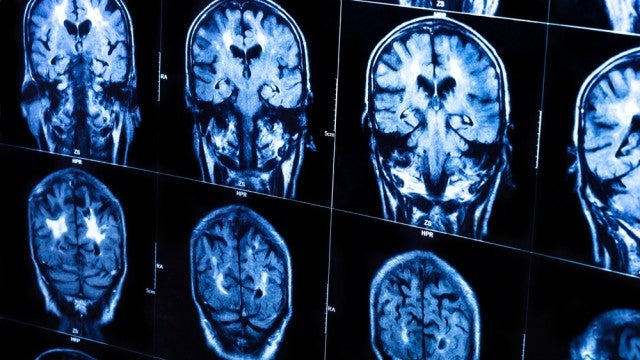 New Test Predicts Alzheimer's at Least Three Years in Advance