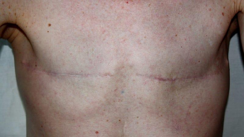 Facebook Won't Remove Mastectomy Photos...Unless It Feels Like It