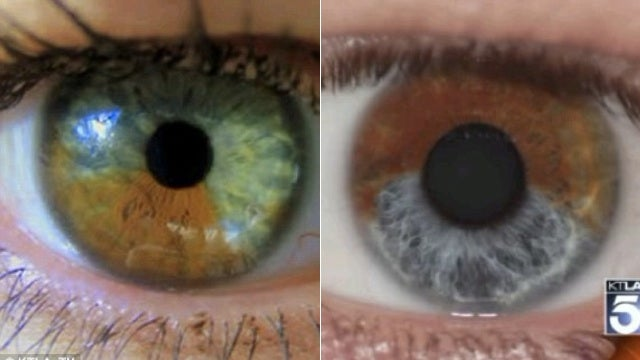 A Doctor Claims That He Can Magically Transform Brown Eyes to Blue with Lasers