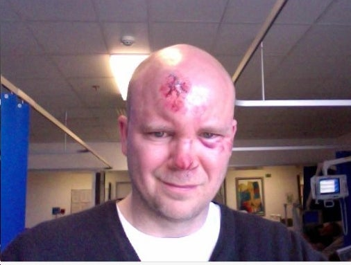 Toby Young Hit by Car