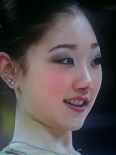 What Caused Mirai Nagasu's Nose to Bleed at the Olympics?