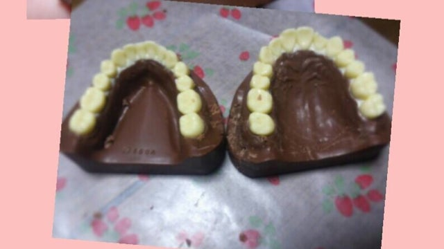 Chocolate Teeth Are Certainly Something to Chew On