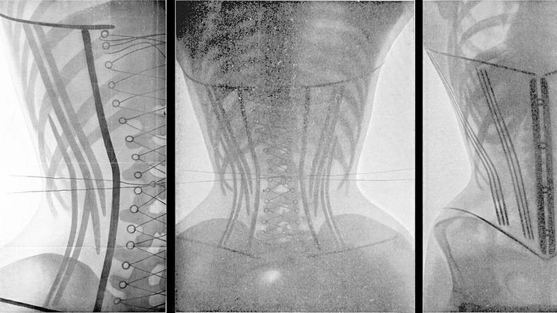 Taking X-Rays Of Women In Corsets Was A Haunting Use Of New Technology