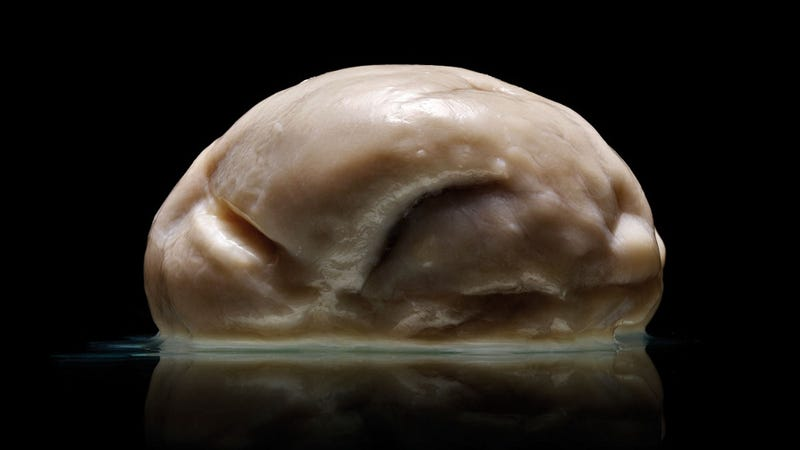 This may be the strangest human brain known to science