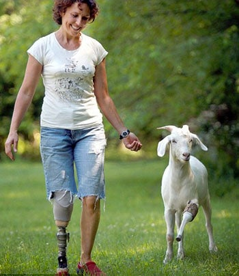Doctor Makes Prosthetic Limbs For Woman & Her Pet Goat